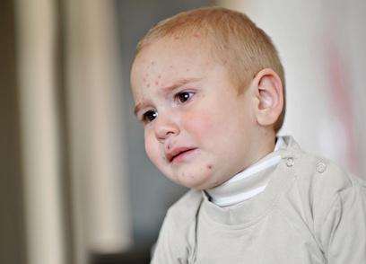 Artikelgebend sind jegliche Kinderkrankheiten.
