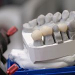 Zahnersatz mit Langzeithalt - Das können Implantate
