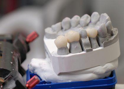 Zahnersatz mit Langzeithalt – Das können Implantate