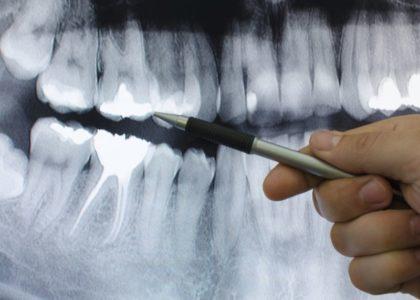 Komplette Zahnsanierung – Wichtige Infos und Tipps