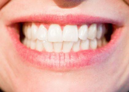 Gesunde Zähne für einen fitten und gesunden Körper